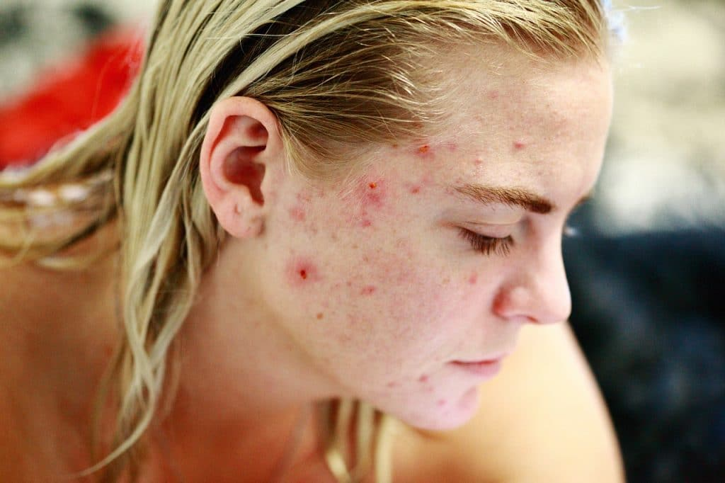 acne pelle brufoli