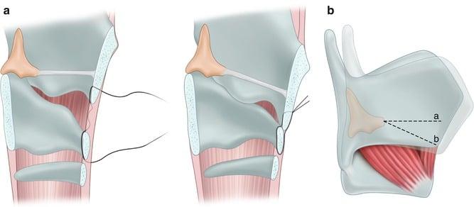 approssimazione crico-tiroidea tiroplastica