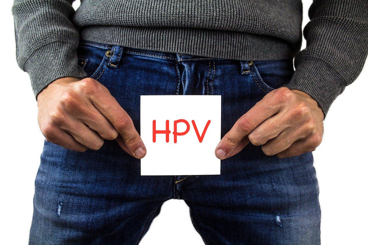condilomi o verruche genitali causate dal papillomavirus umano HPV
