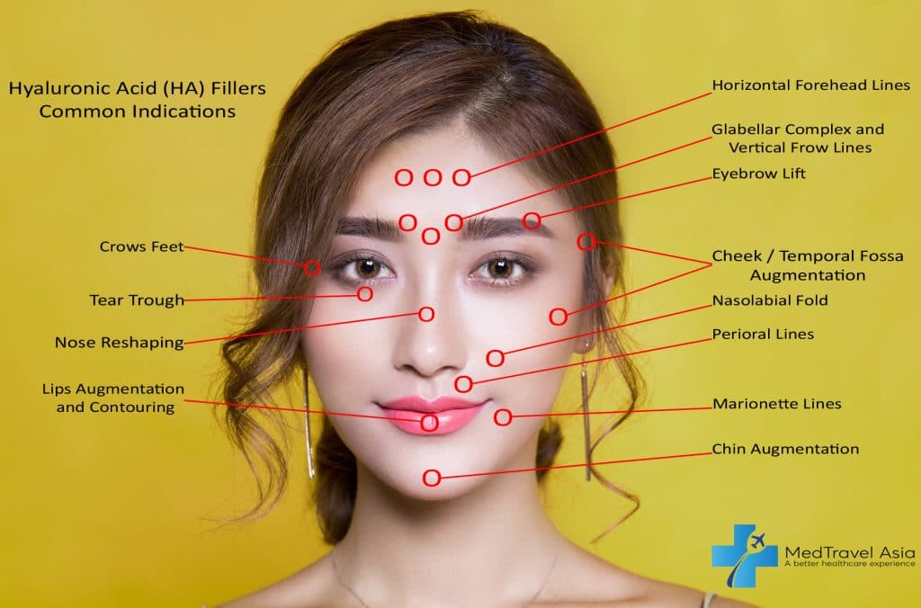 hyaluronic acid treatment areas