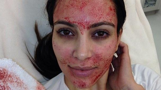 vampire facial kardashian